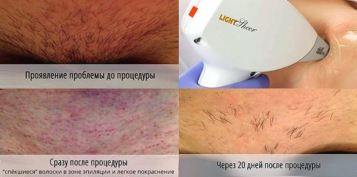 Лазерная эпиляция отзывы после первой процедуры смотреть онлайн массажер для тела